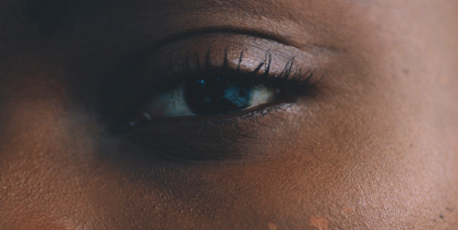 Everything You've Ever Wanted to Know About Undereye Fillers
